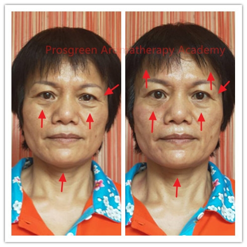 Before-After Meridian Massage