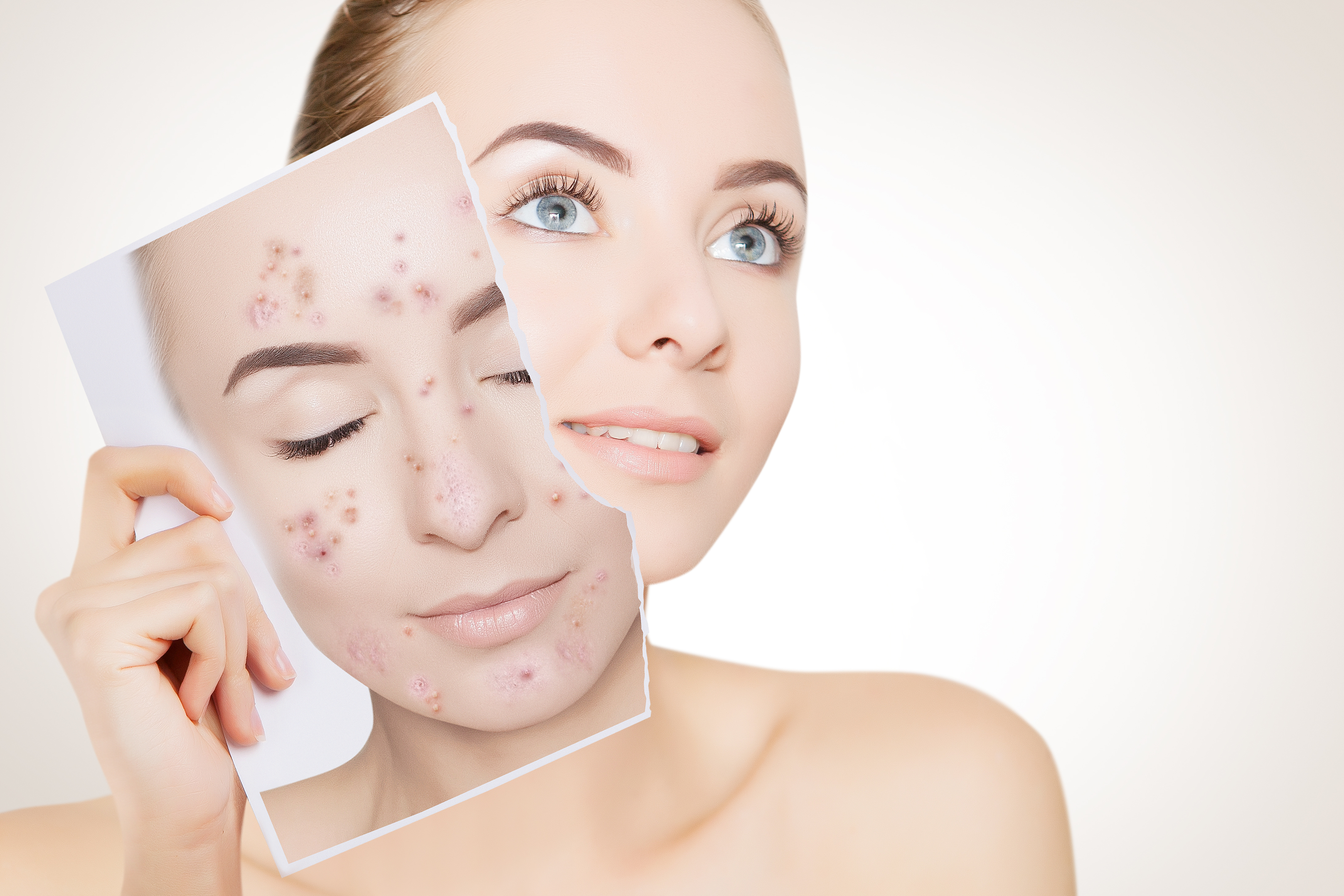Course Name: Acne course from cureskin academy
