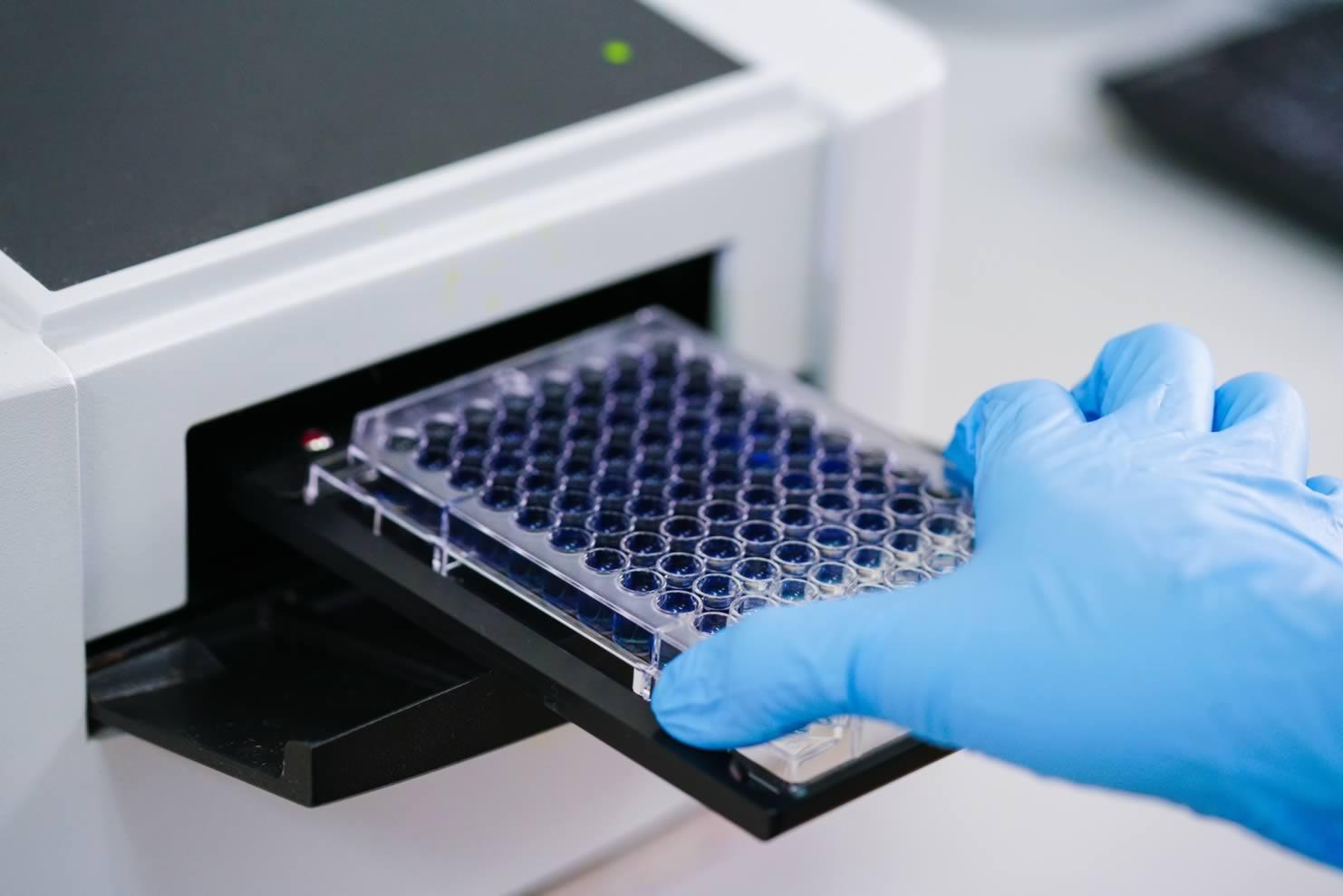 Control de calidad aplicado a serología infecciosa.