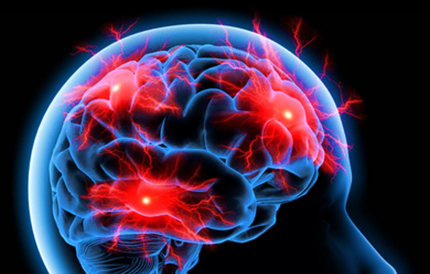 Neuroleadership – Warum gehirngerecht führen?