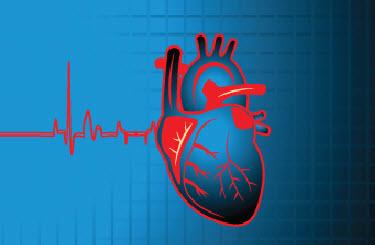 EKG Interpretation for Nurses